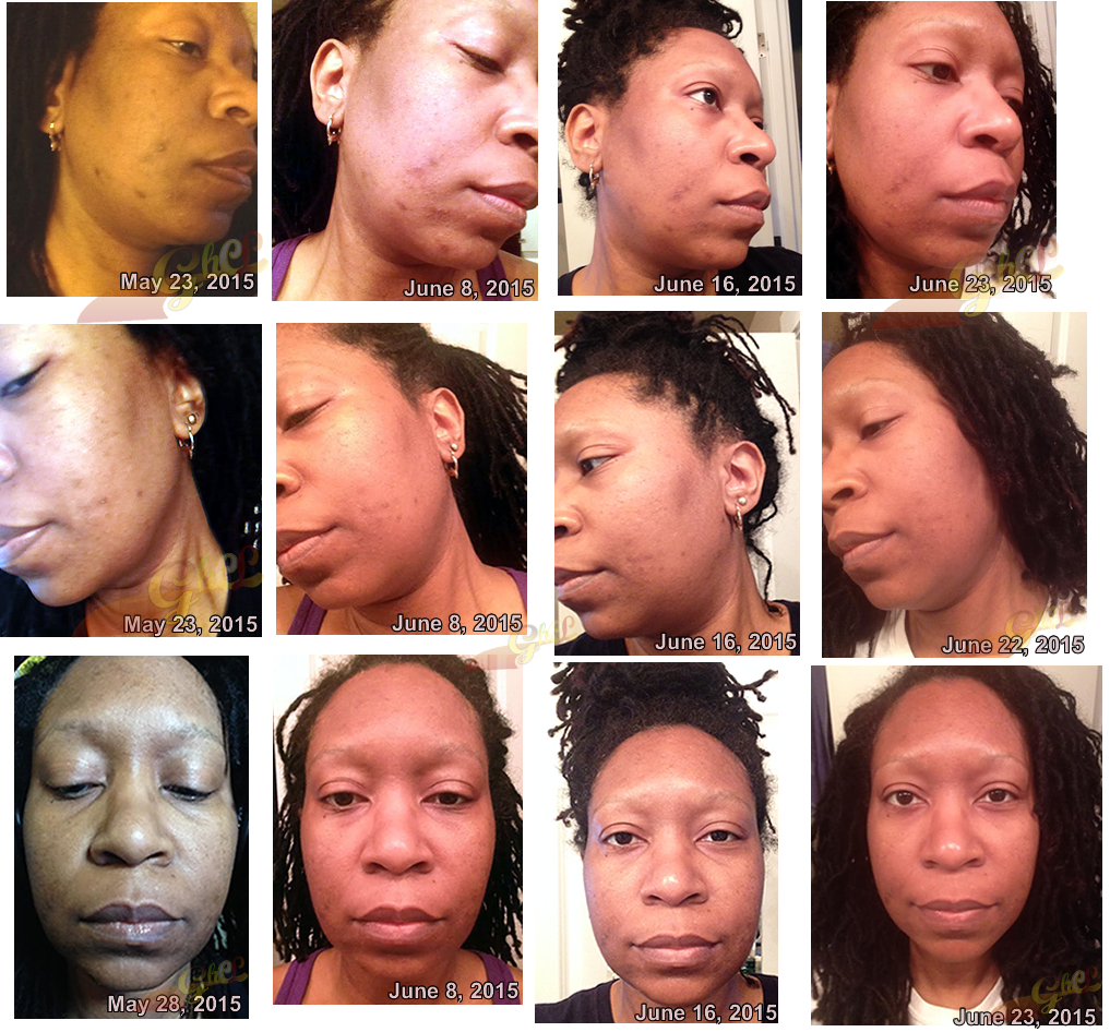 cherie iaso oil face pics may-june 2015